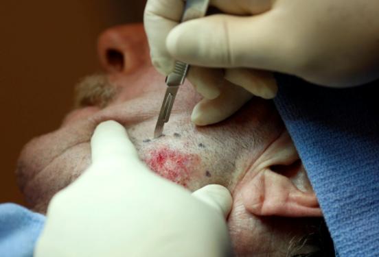 Skin Cancerse Rise